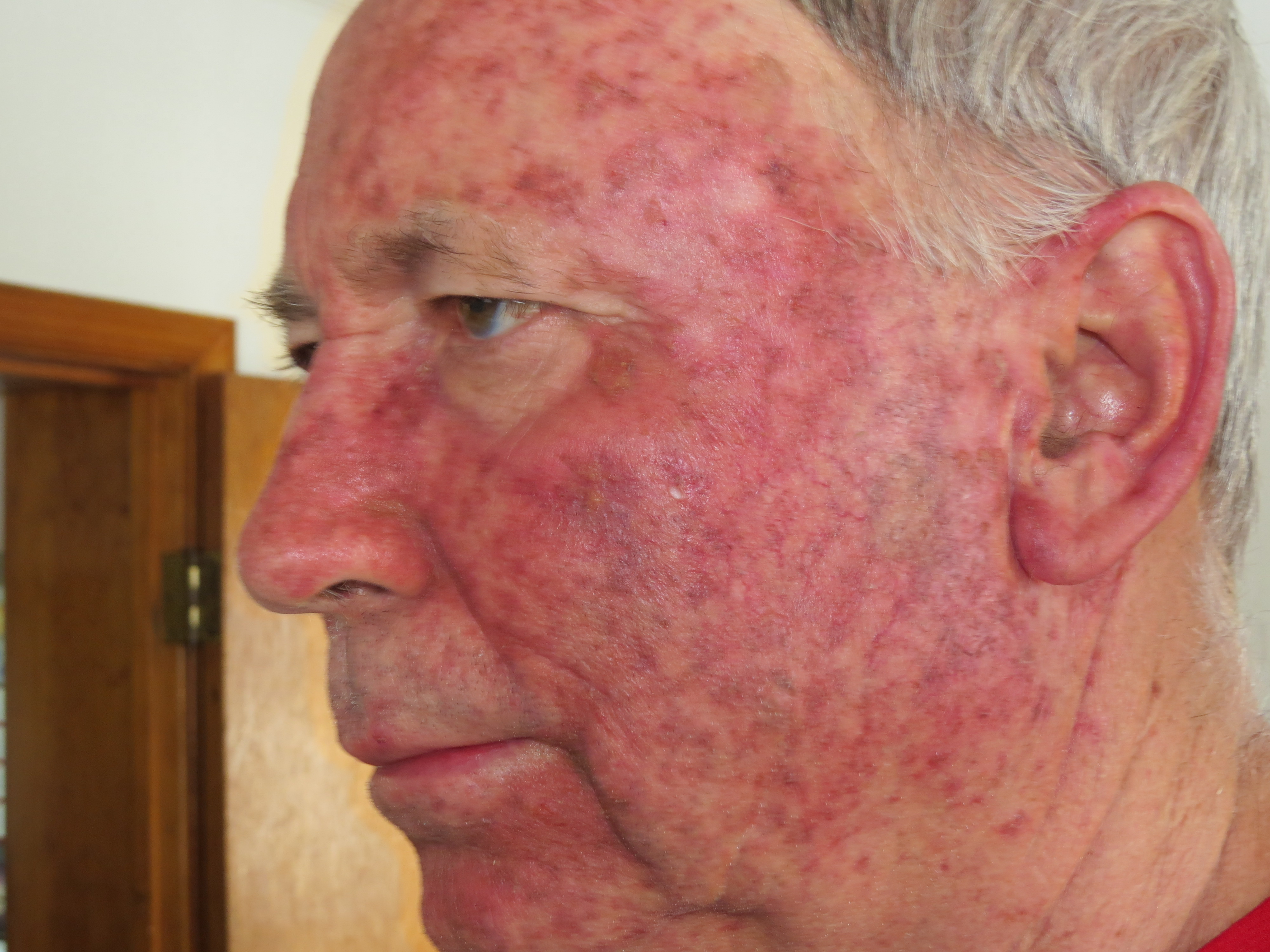 side effects of topical corticosteroid therapy